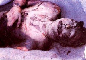 masakrirani Srbi - slike (19)
