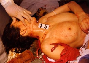 masakrirani Srbi - slike (20)
