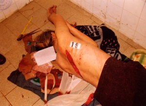 masakrirani Srbi - slike (40)