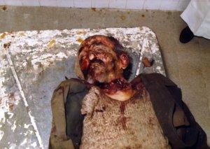 masakrirani Srbi - slike (5)